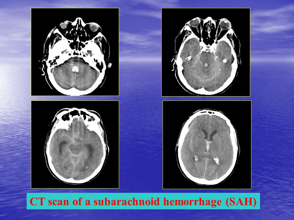 CT scan of a subarachnoid hemorrhage (SAH)