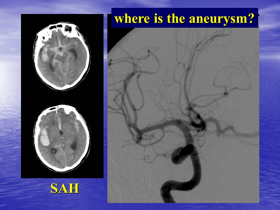 where is the aneurysm? SAH