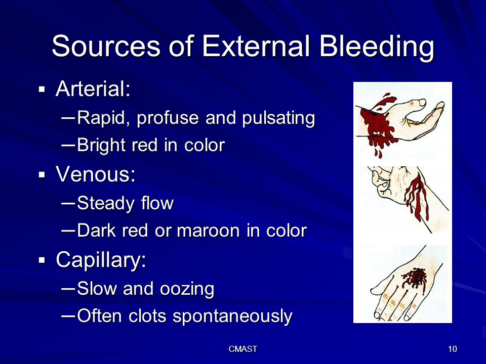 CMAST 10 Sources of External Bleeding  Arterial: ─Rapid, profuse and pulsating ─Bright red in color  Venous: ─Steady flow ─Dark red or maroon in color  Capillary: ─Slow and oozing ─Often clots spontaneously