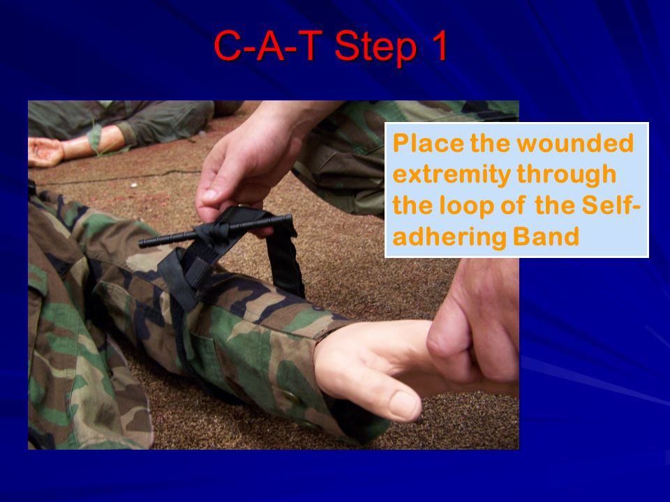 C-A-T Step 1 Place the wounded extremity through the loop of the Self- adhering Band