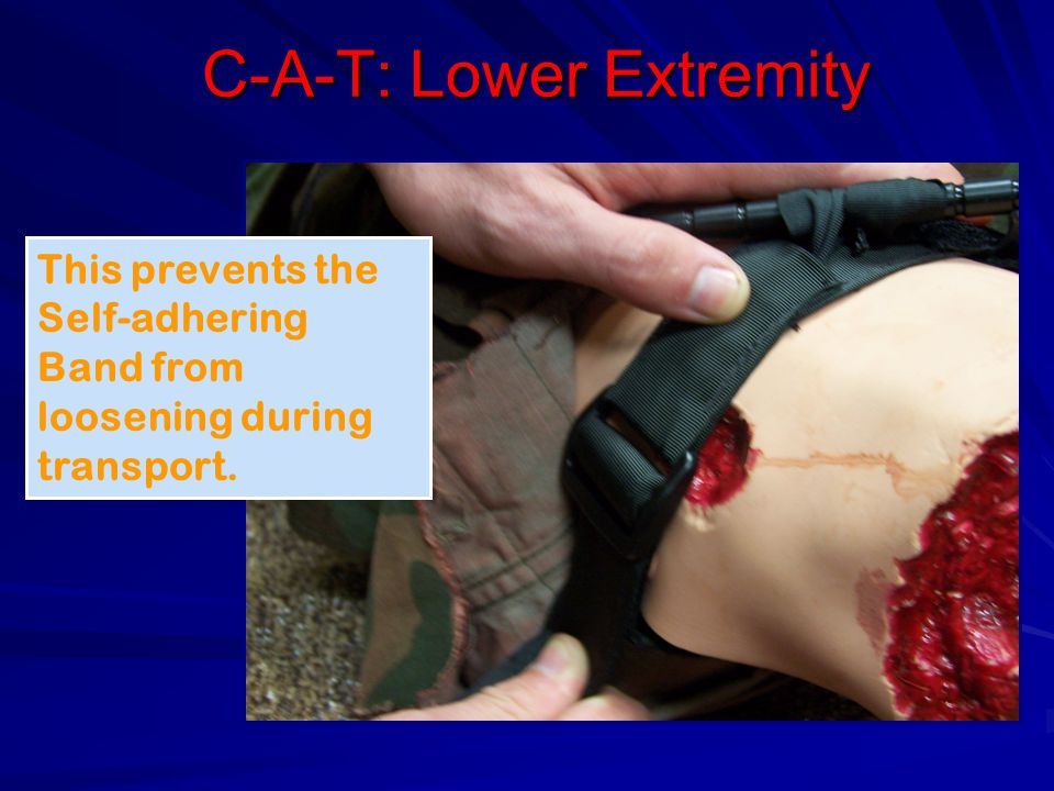C-A-T: Lower Extremity This prevents the Self-adhering Band from loosening during transport.