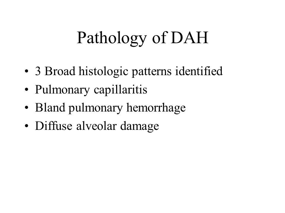 Pathology of DAH 3 Broad histologic patterns identified Pulmonary capillaritis Bland pulmonary hemorrhage Diffuse alveolar damage