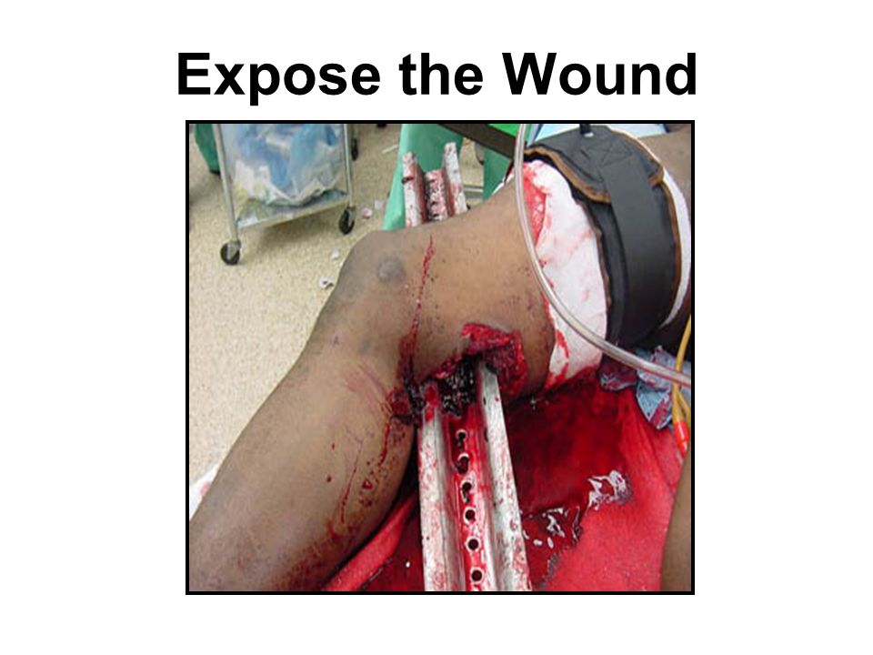 Expose the Wound