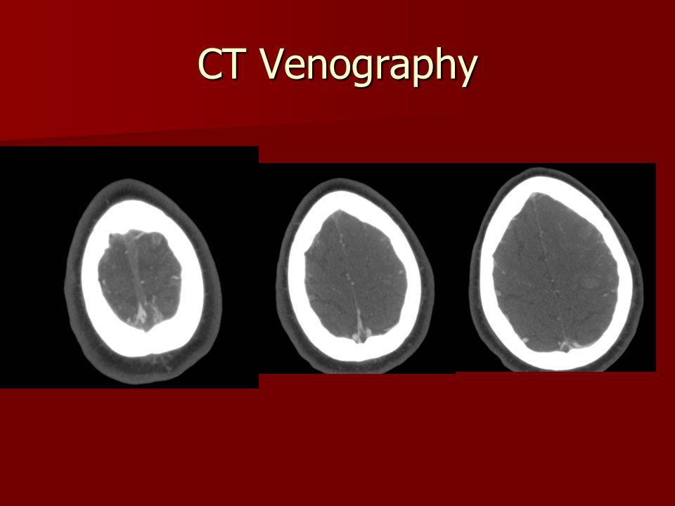 CT Venography