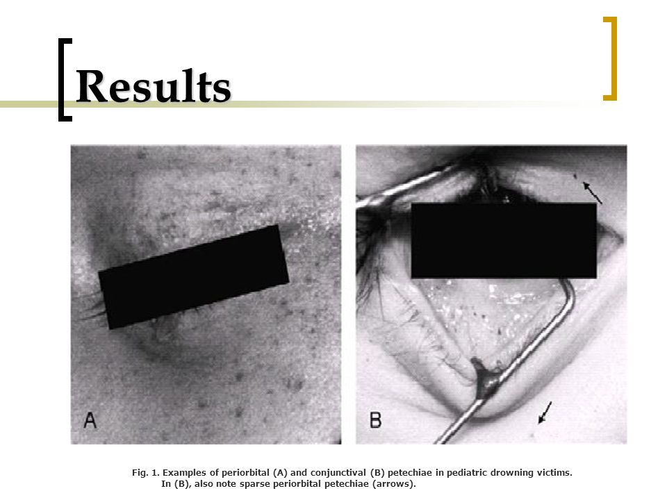 Results Fig. 1. Examples of periorbital (A) and conjunctival (B) petechiae in pediatric drowning victims. In (B), also note sparse periorbital petechi