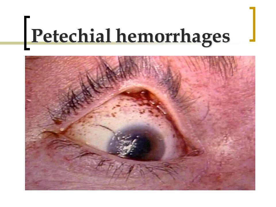 Petechial hemorrhages