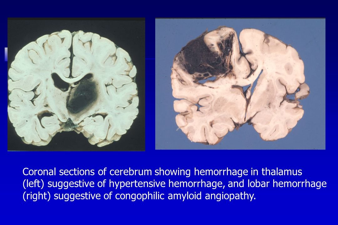 Coronal sections of cerebrum showing hemorrhage in thalamus (left) suggestive of hypertensive hemorrhage, and lobar hemorrhage (right) suggestive of congophilic amyloid angiopathy.