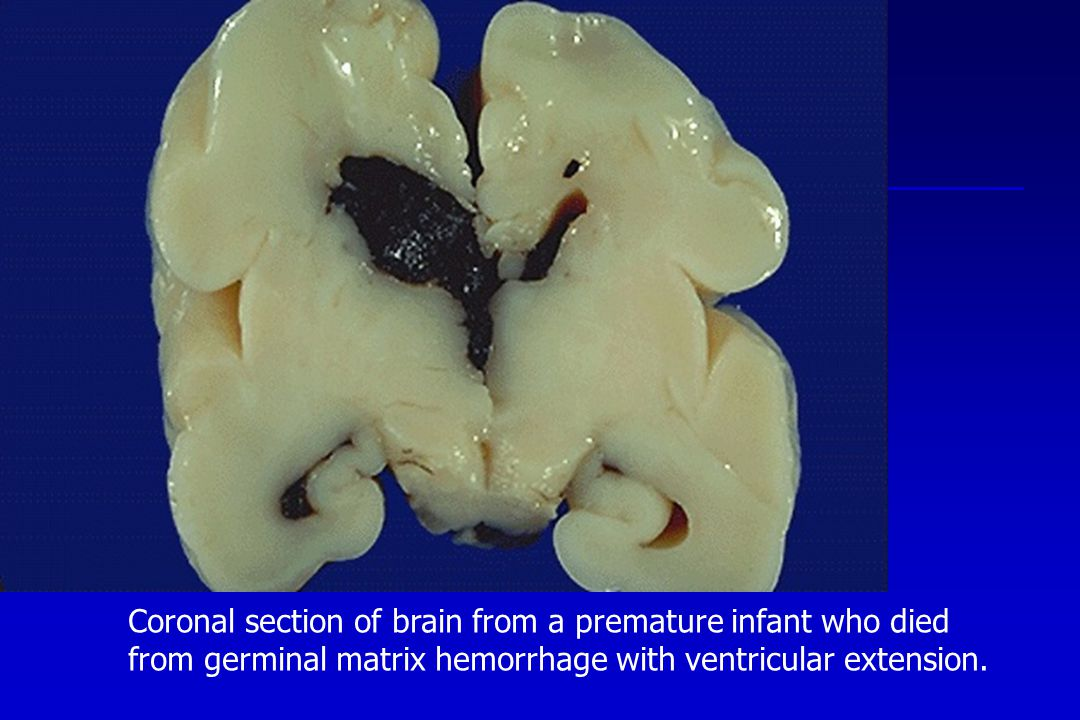 Coronal section of brain from a premature infant who died from germinal matrix hemorrhage with ventricular extension.