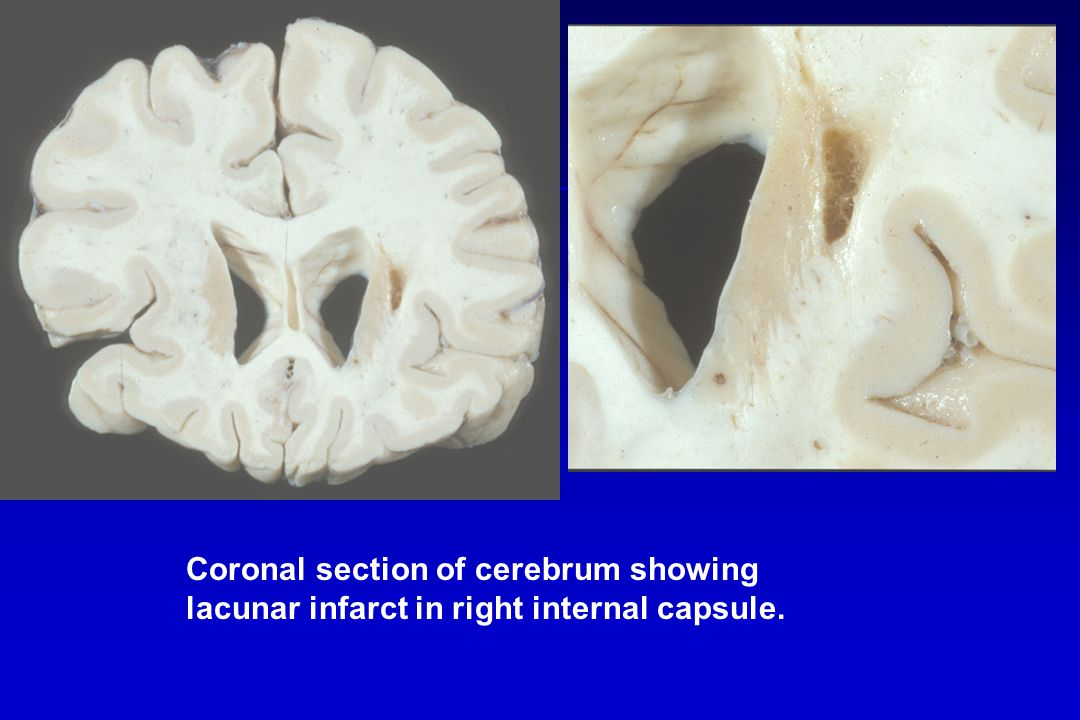 Coronal section of cerebrum showing lacunar infarct in right internal capsule.