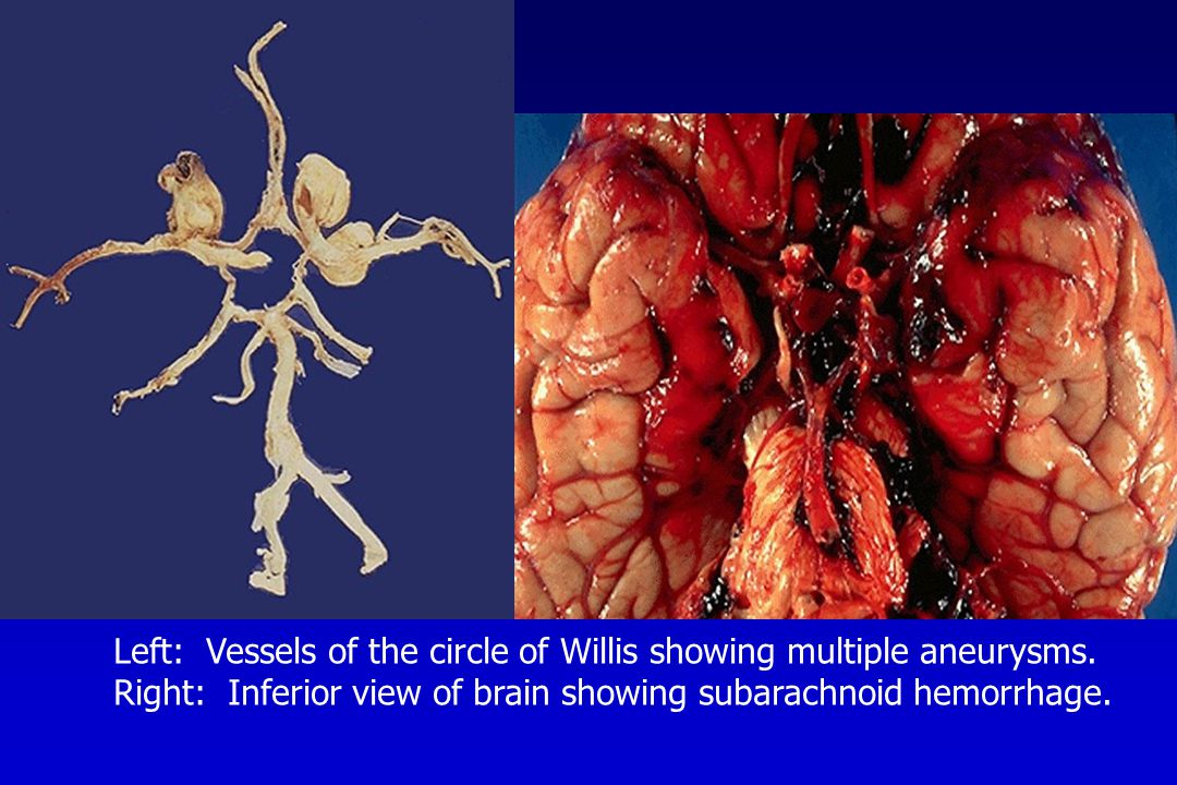 Left: Vessels of the circle of Willis showing multiple aneurysms. Right: Inferior view of brain showing subarachnoid hemorrhage.