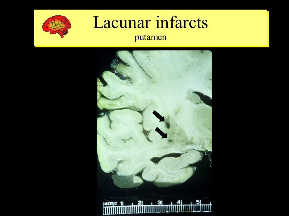 Lacunar infarcts putamen Lacunar infarcts putamen