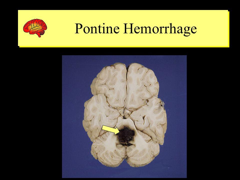 Pontine Hemorrhage Pontine Hemorrhage