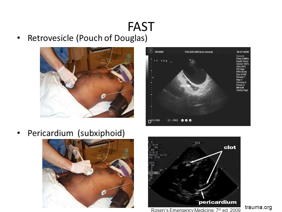 FAST Retrovesicle (Pouch of Douglas) Pericardium (subxiphoid) trauma.org Rosen's Emergency Medicine, 7 th ed. 2009
