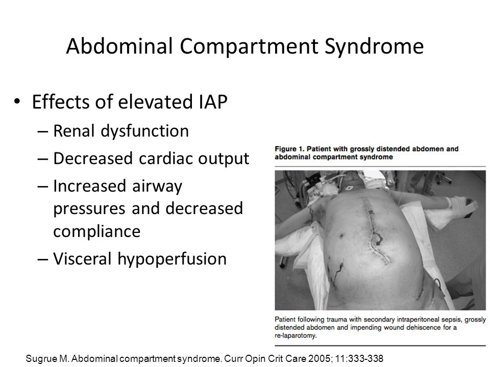 Abdominal Compartment Syndrome Effects of elevated IAP – Renal dysfunction – Decreased cardiac output – Increased airway pressures and decreased compl