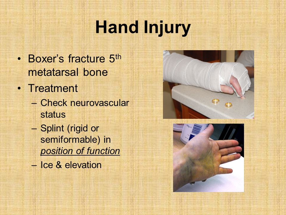 Hand Injury Boxer's fracture 5 th metatarsal bone Treatment –Check neurovascular status –Splint (rigid or semiformable) in position of function –Ice &