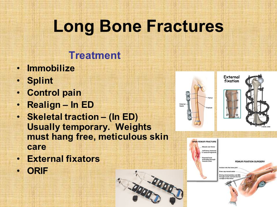 Long Bone Fractures Treatment Immobilize Splint Control pain Realign – In ED Skeletal traction – (In ED) Usually temporary. Weights must hang free, me