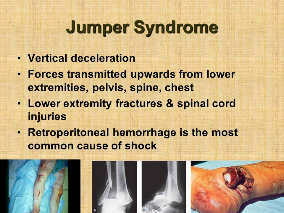 Jumper Syndrome Vertical deceleration Forces transmitted upwards from lower extremities, pelvis, spine, chest Lower extremity fractures & spinal cord