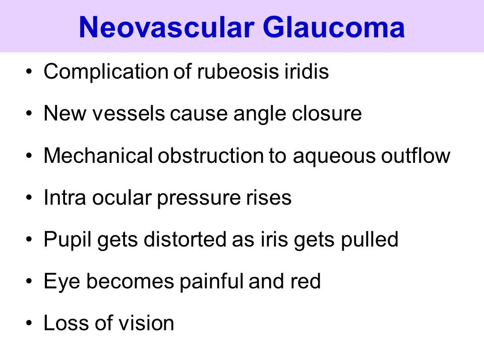 Neovascular Glaucoma Complication of rubeosis iridis New vessels cause angle closure Mechanical obstruction to aqueous outflow Intra ocular pressure r