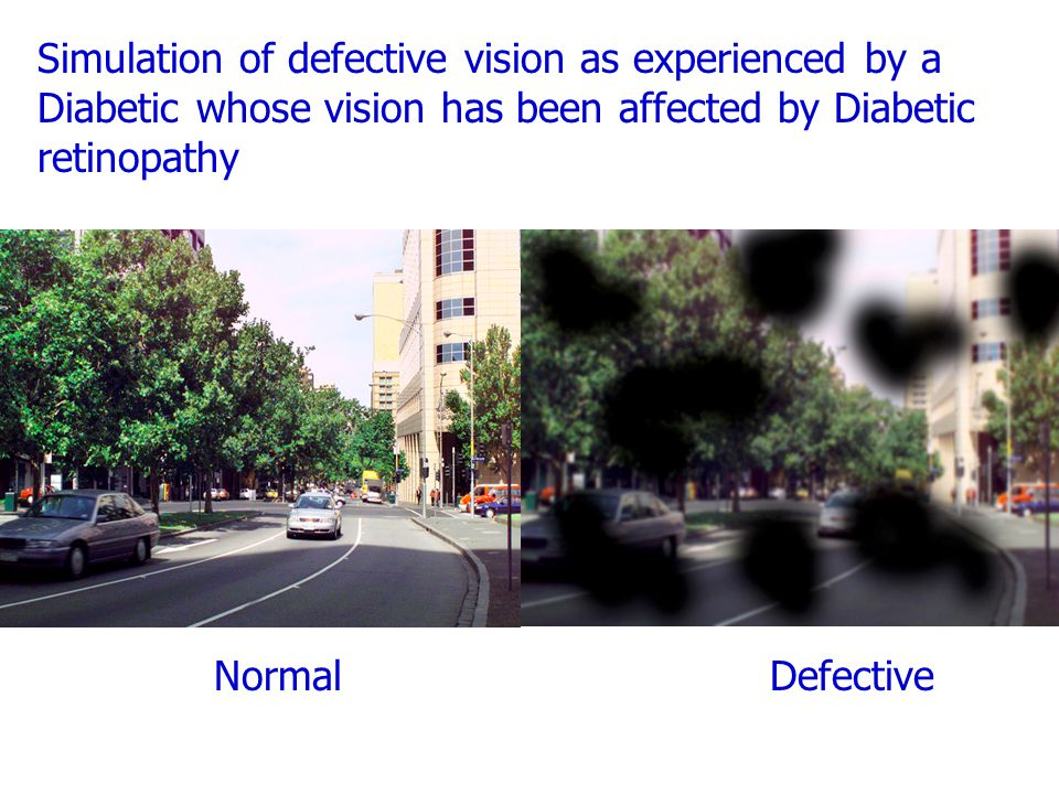Simulation of defective vision as experienced by a Diabetic whose vision has been affected by Diabetic retinopathy NormalDefective
