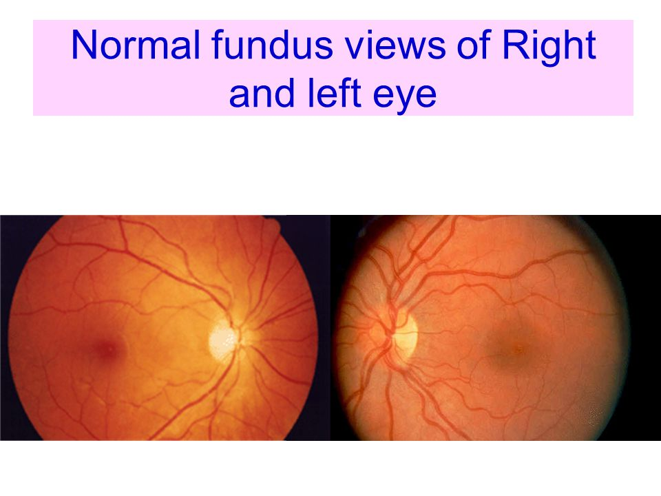 Normal fundus views of Right and left eye