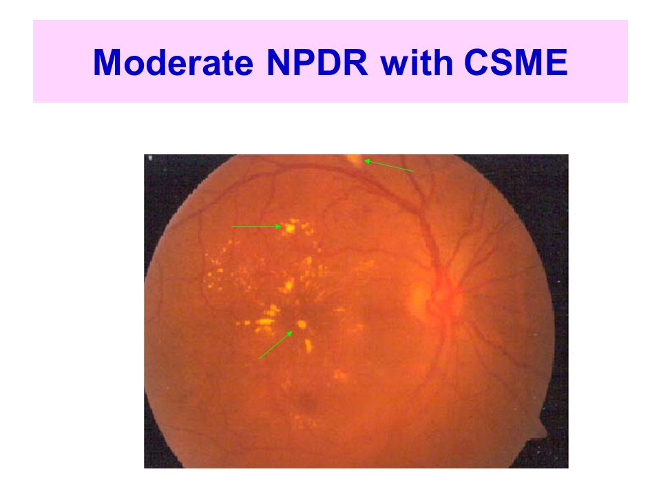 Moderate NPDR with CSME