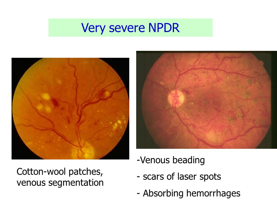 Very severe NPDR -Venous beading - scars of laser spots - Absorbing hemorrhages Cotton-wool patches, venous segmentation