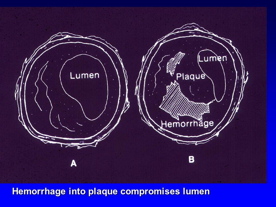 Hemorrhage into plaque compromises lumen