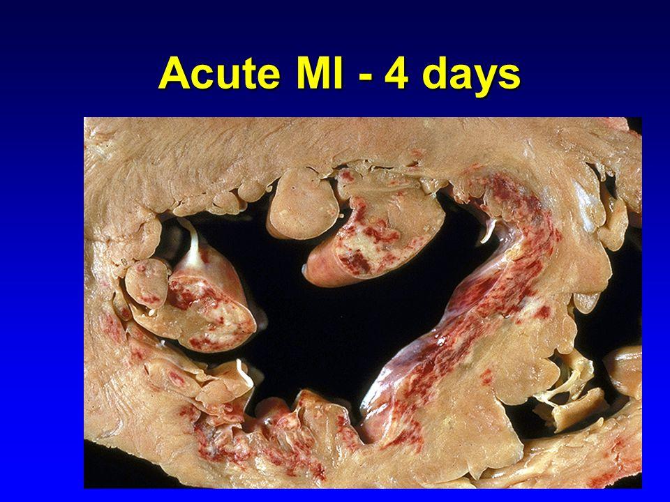 Acute MI - 4 days