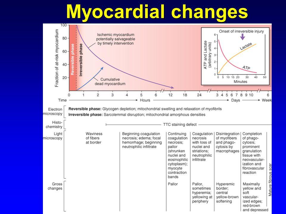 Myocardial changes