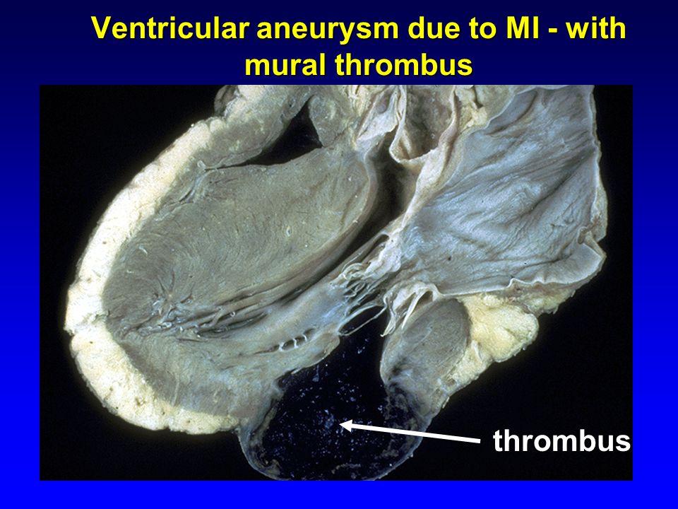 Ventricular aneurysm due to MI - with mural thrombus thrombus