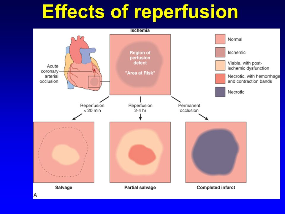 Effects of reperfusion