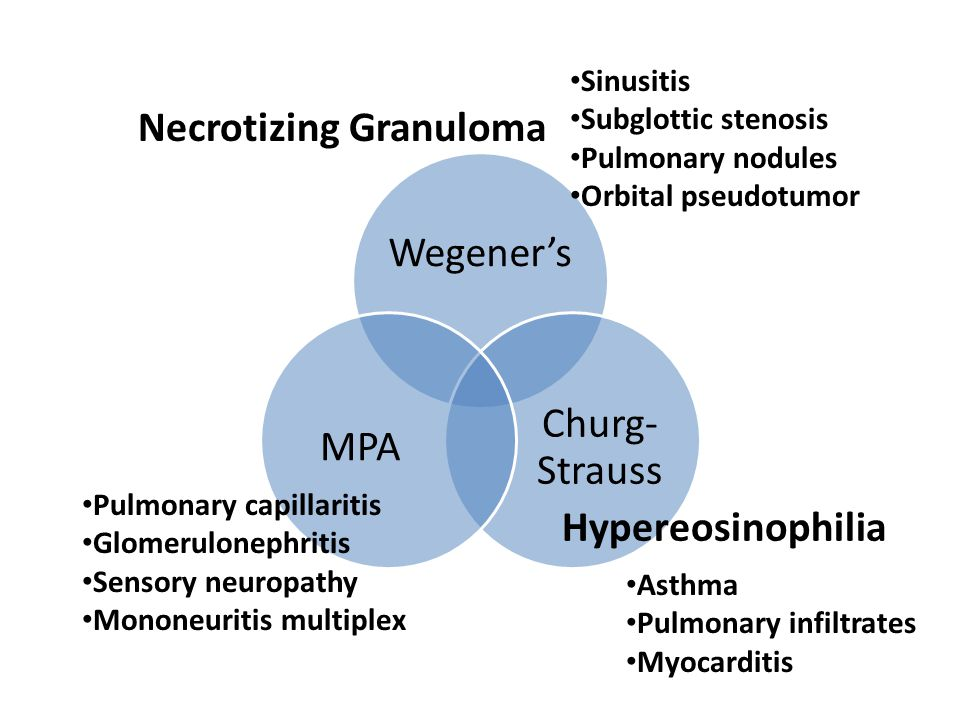 Diagnosis of a systemic vasculitis is often a diagnosis of exclusion, based on recognition of the clinical syndrome – e.g.