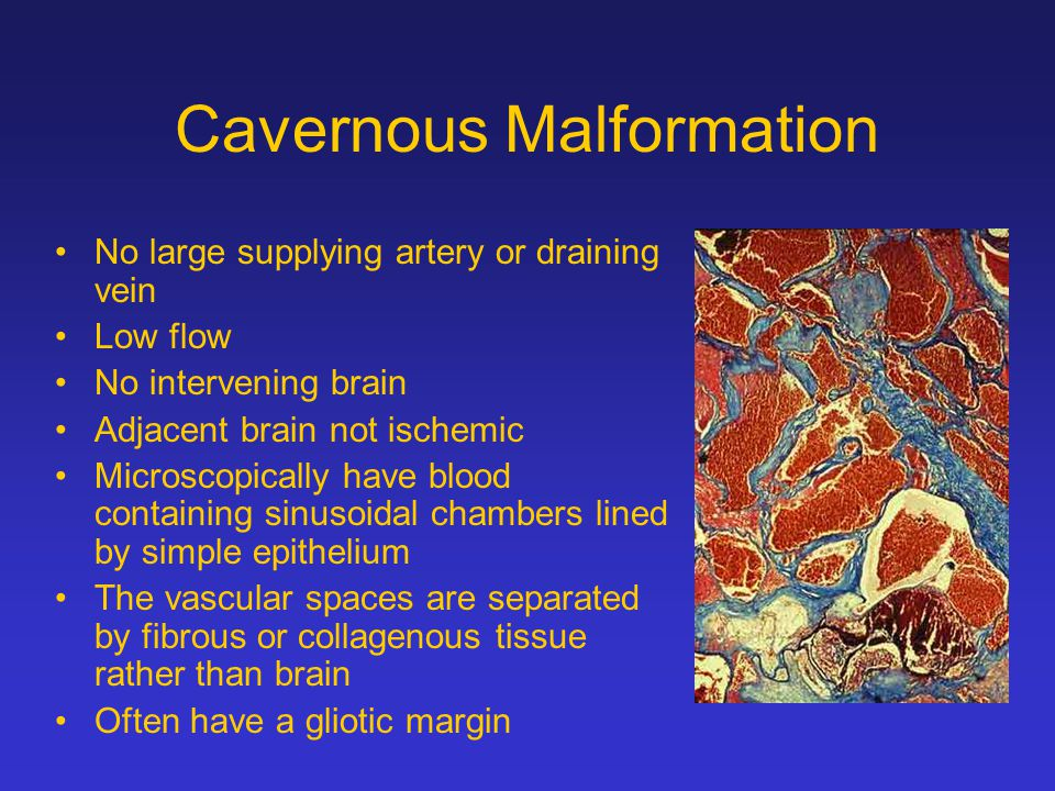 Cavernous Malformation No large supplying artery or draining vein Low flow No intervening brain Adjacent brain not ischemic Microscopically have blood containing sinusoidal chambers lined by simple epithelium The vascular spaces are separated by fibrous or collagenous tissue rather than brain Often have a gliotic margin