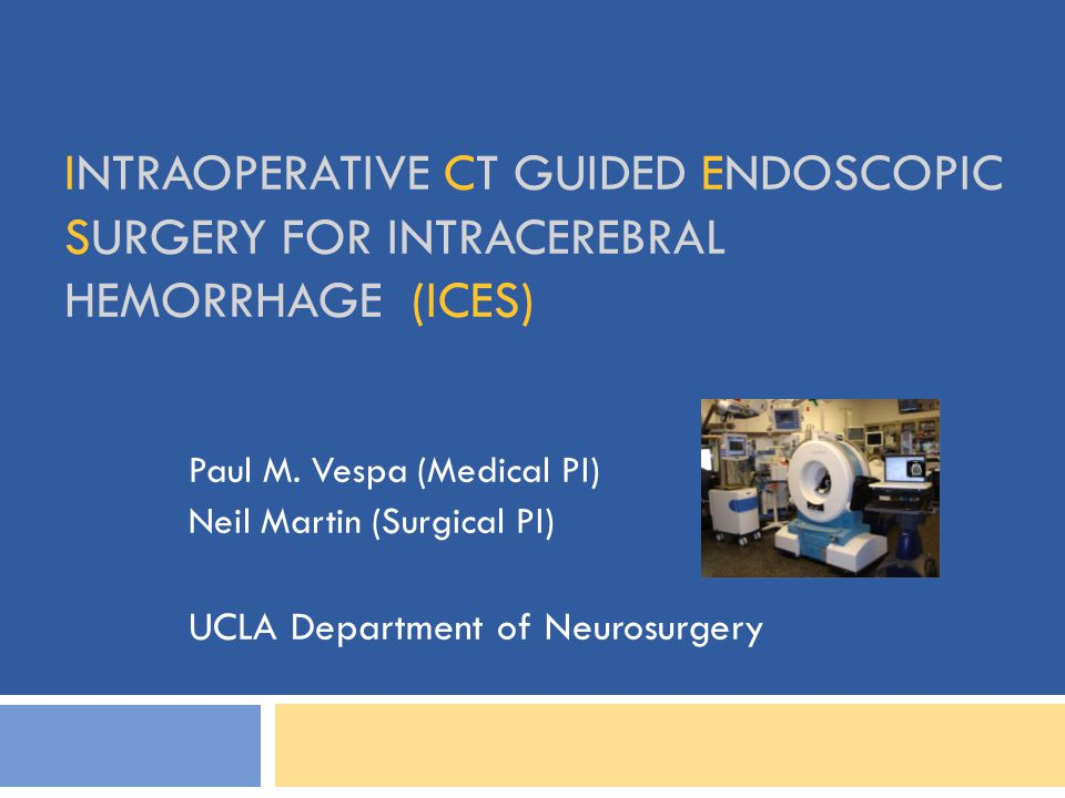 INTRAOPERATIVE CT GUIDED ENDOSCOPIC SURGERY FOR INTRACEREBRAL HEMORRHAGE (ICES) Paul M. Vespa (Medical PI) Neil Martin (Surgical PI) UCLA Department o
