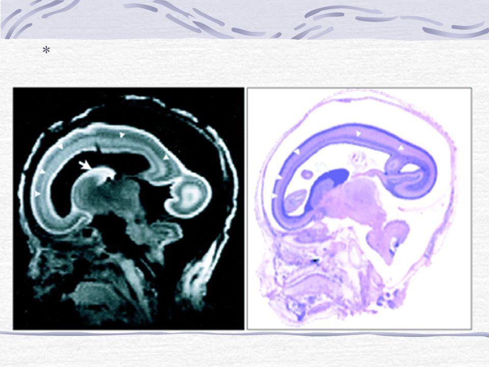 Neonatal Encephalopathy Periventricular Leukomalacia Hypoxic-ischemic encephalopathy Near total/profound asphyxia Prolonged partial asphyxia Infarction (stroke) Arterial Venous