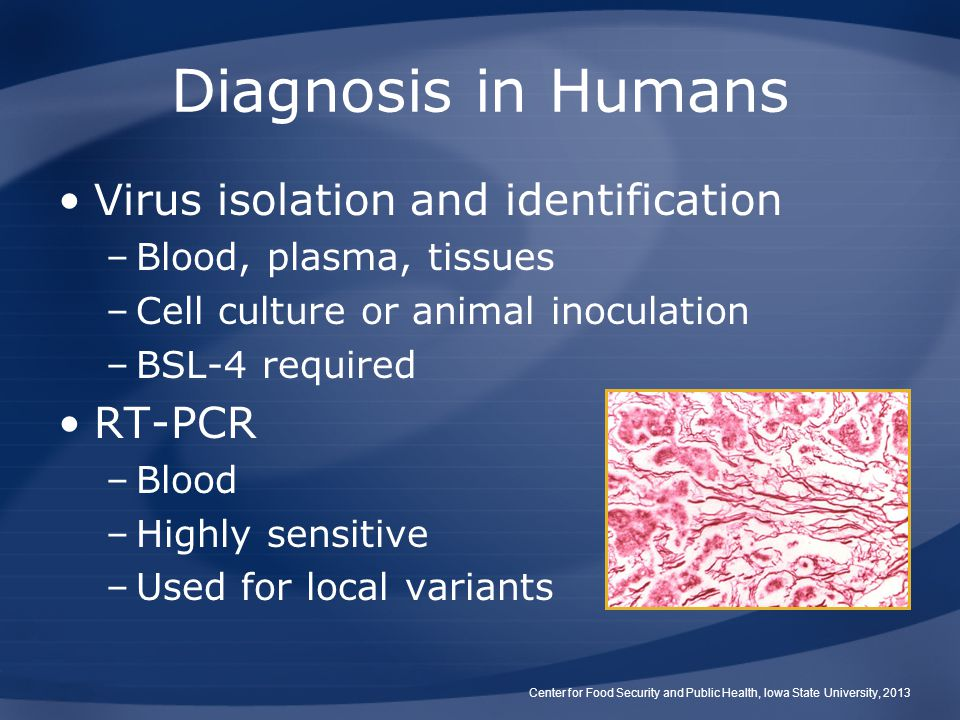 Diagnosis in Humans Virus isolation and identification –Blood, plasma, tissues –Cell culture or animal inoculation –BSL-4 required RT-PCR –Blood –High