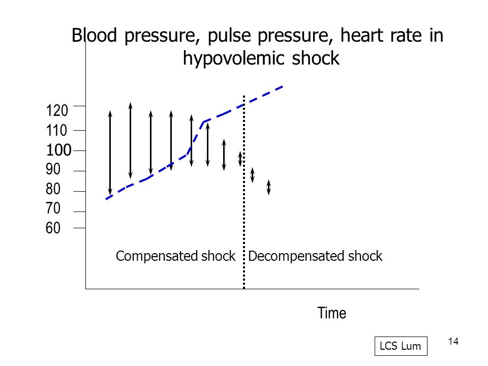 14 120 110 100 90 80 70 60 Blood pressure, pulse pressure, heart rate in hypovolemic shock Time LCS Lum Compensated shock Decompensated shock