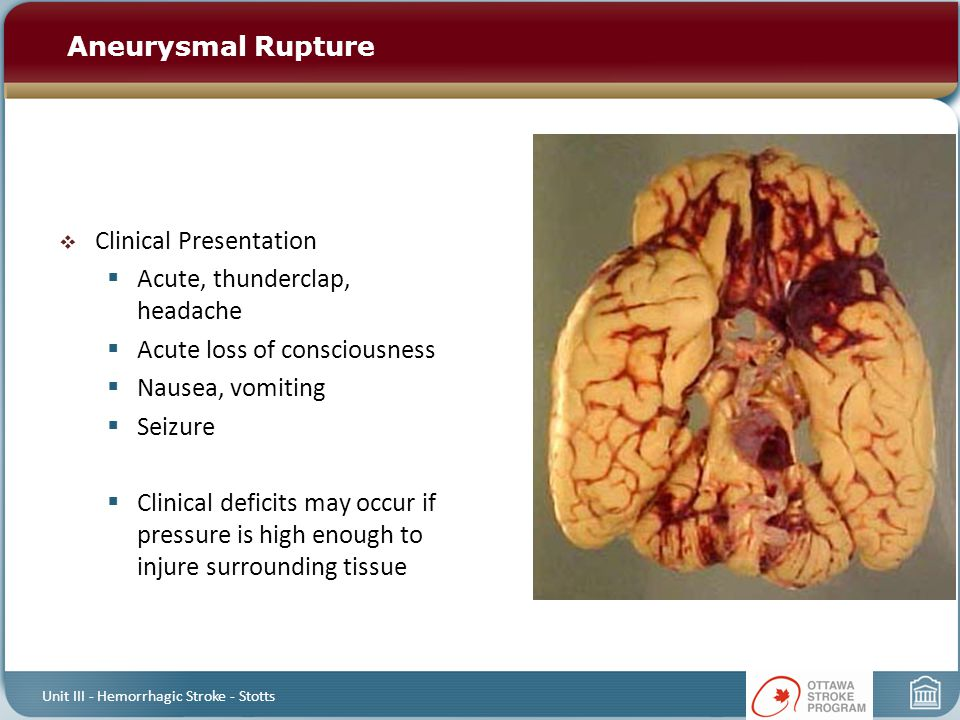  Clinical Presentation  Acute, thunderclap, headache  Acute loss of consciousness  Nausea, vomiting  Seizure  Clinical deficits may occur if pre