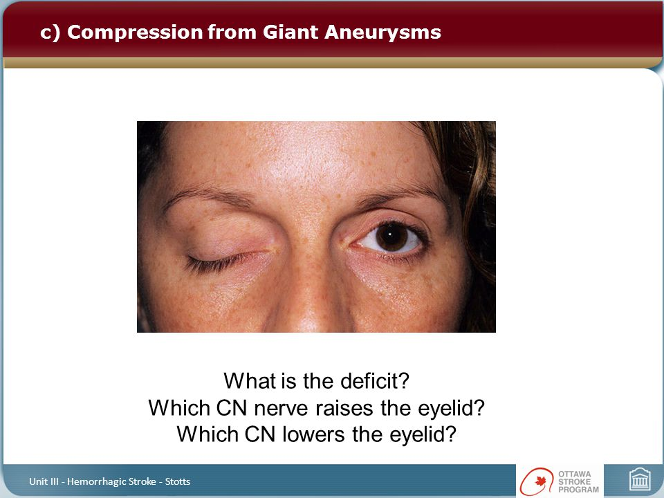 c) Compression from Giant Aneurysms Unit III - Hemorrhagic Stroke - Stotts What is the deficit? Which CN nerve raises the eyelid? Which CN lowers the