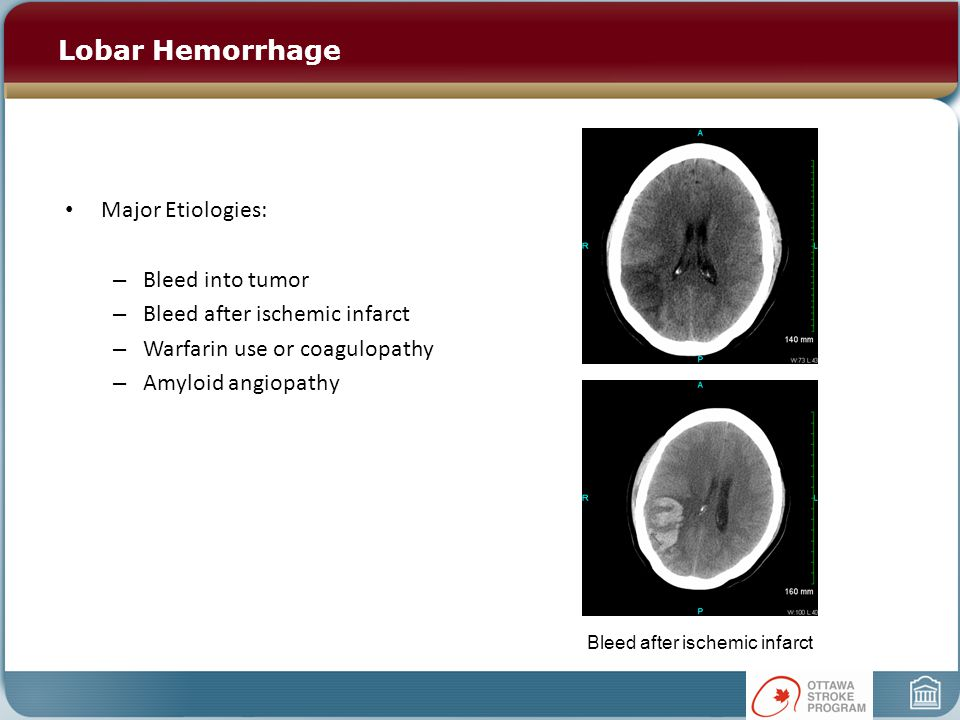 Lobar Hemorrhage Major Etiologies: – Bleed into tumor – Bleed after ischemic infarct – Warfarin use or coagulopathy – Amyloid angiopathy Bleed after ischemic infarct
