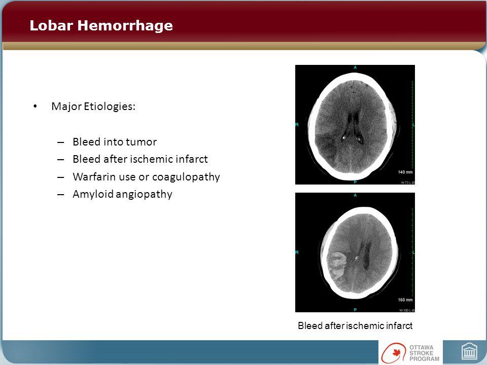 Lobar Hemorrhage Major Etiologies: – Bleed into tumor – Bleed after ischemic infarct – Warfarin use or coagulopathy – Amyloid angiopathy Bleed after i