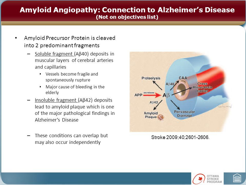 Amyloid Angiopathy: Connection to Alzheimer's Disease (Not on objectives list) Amyloid Precursor Protein is cleaved into 2 predominant fragments – Soluble fragment (Aβ40) deposits in muscular layers of cerebral arteries and capillaries Vessels become fragile and spontaneously rupture Major cause of bleeding in the elderly – Insoluble fragment (Aβ42) deposits lead to amyloid plaque which is one of the major pathological findings in Alzheimer's Disease – These conditions can overlap but may also occur independently Stroke 2009;40;2601-2606.
