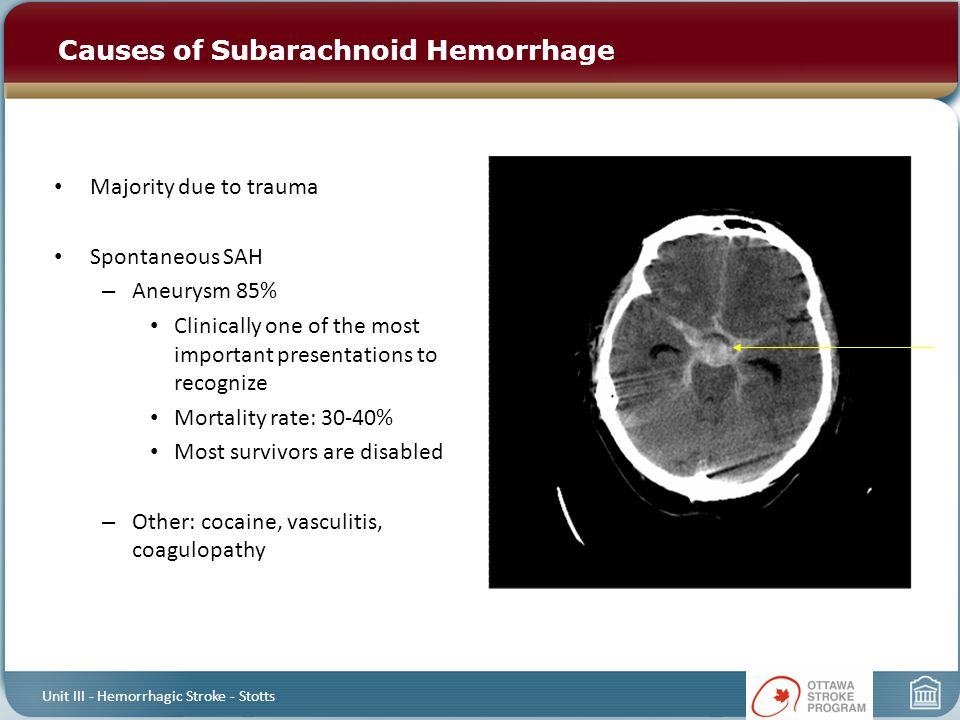 Causes of Subarachnoid Hemorrhage Majority due to trauma Spontaneous SAH – Aneurysm 85% Clinically one of the most important presentations to recognize Mortality rate: 30-40% Most survivors are disabled – Other: cocaine, vasculitis, coagulopathy