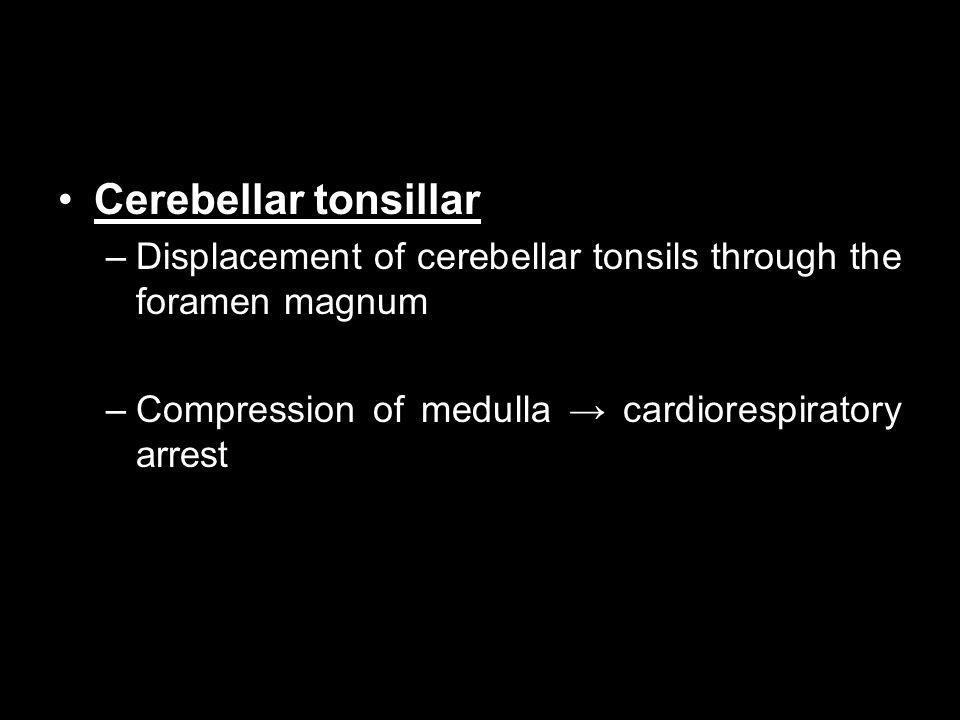 Cerebellar tonsillar –Displacement of cerebellar tonsils through the foramen magnum –Compression of medulla → cardiorespiratory arrest
