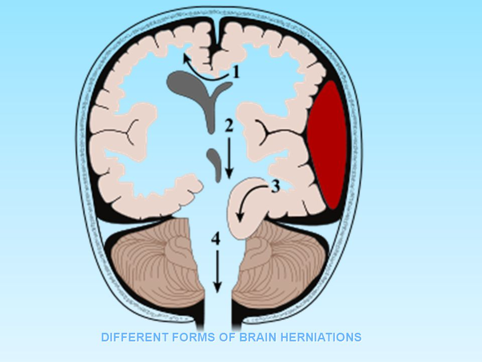 DIFFERENT FORMS OF BRAIN HERNIATIONS