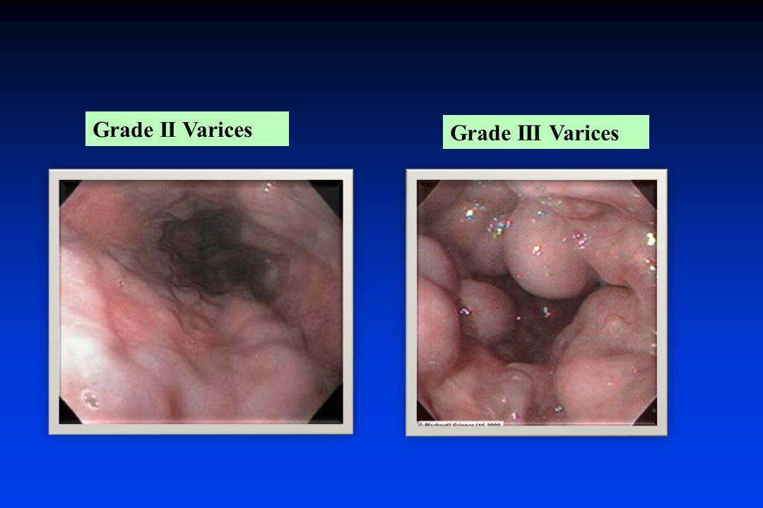 Grade II Varices Grade III Varices