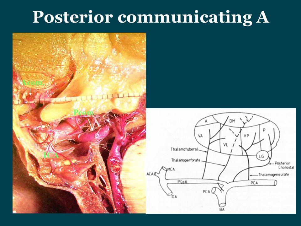 Posterior communicating A Acom. ICA Pcom.