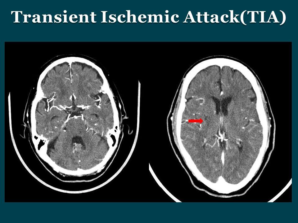 Transient Ischemic Attack(TIA)