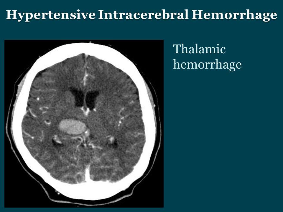 Hypertensive Intracerebral Hemorrhage Thalamic hemorrhage