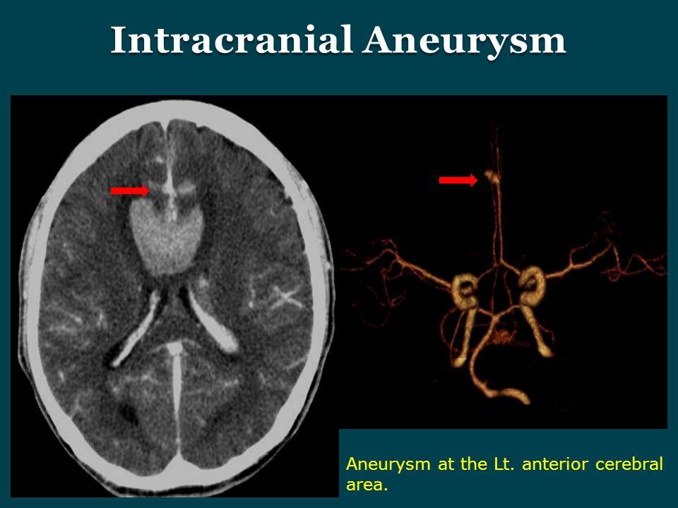 Aneurysm at the Lt. anterior cerebral area.